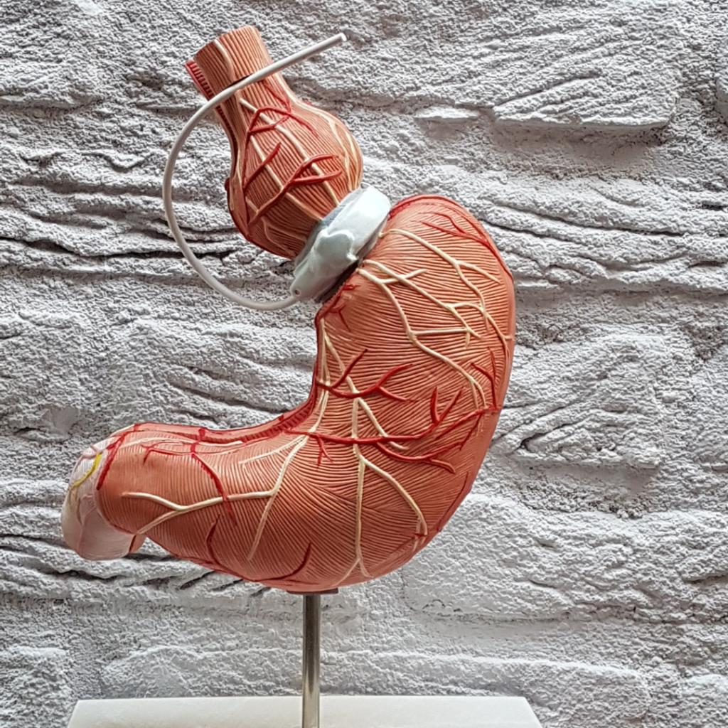 Virtuele maagband